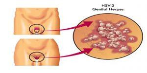 verschijnselen van herpes
