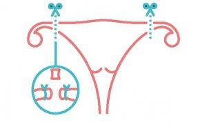 sterilisatie van de vrouw