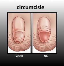 besnijdenis jongens